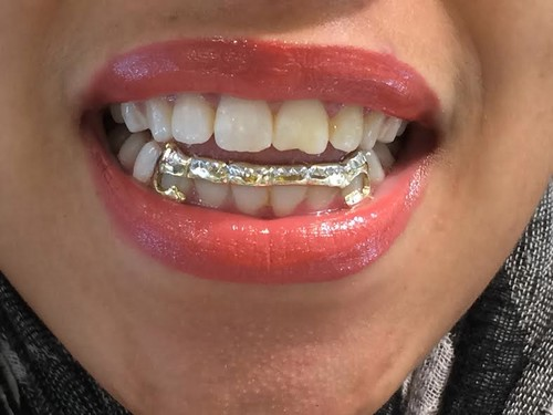 14k gold overlay removable gold teeth grillz caps including the mold kit  and shipping/ 6 teeth/#bf1