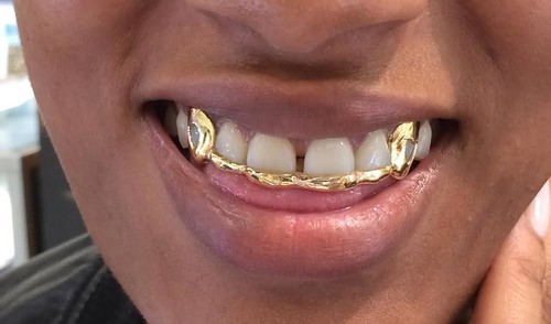 14k gold overlay removable gold teeth grillz caps including the mold kit  and shipping/ 6 teeth/#ba4